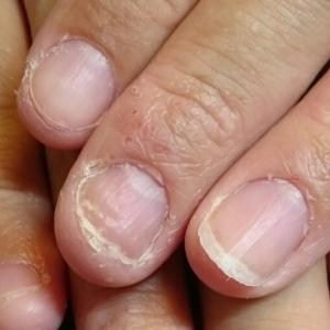 深爪 噛み爪 軽度 中度 改善 矯正 施術 ネイル サロン 改善 コンプレックス 治る ボロボロ