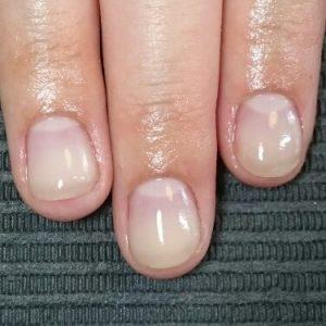 深爪 噛み爪 軽度 中度 改善 矯正 施術 ネイル サロン